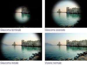 Glaucoma - CMO ITALIA