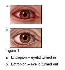 ectropion-and-entropion