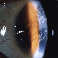 Lattice_corneal_dystrophy_type_1